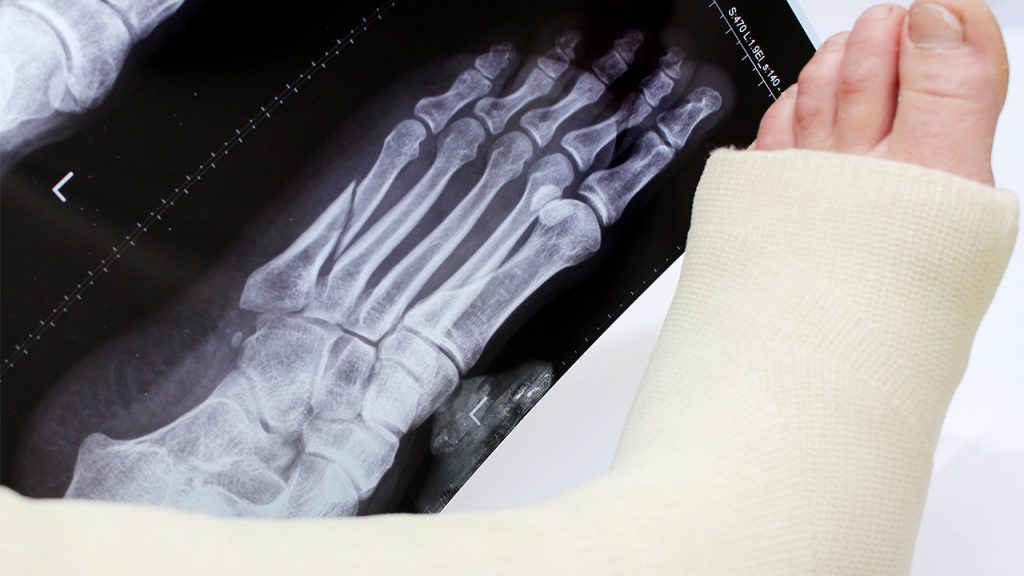 Broken foot in a cast next to an x-ray